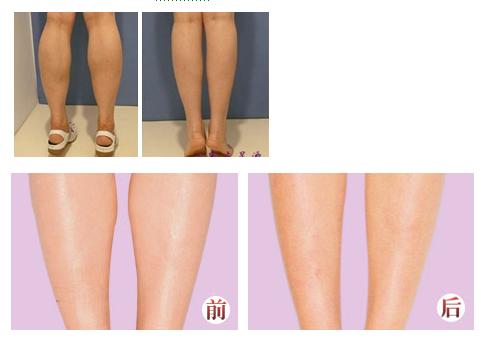 注射肉毒素瘦小腿治疗效果图