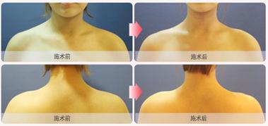 肉毒素瘦肩肌治疗效果图