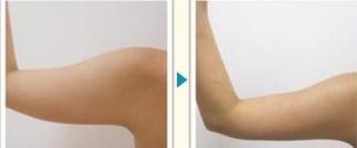 肩部吸脂治疗效果图
