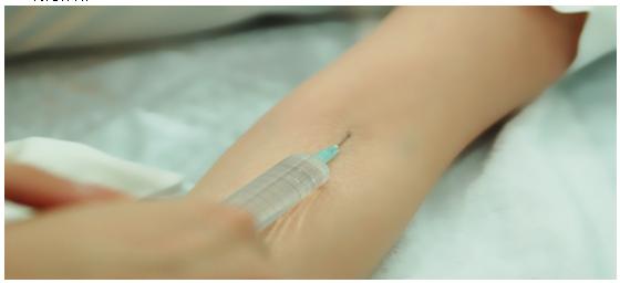 美白针治疗方法手术示意图