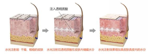水光针治疗方法手术示意图