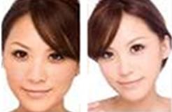 果酸换肤治疗效果图