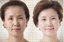 射频美肤治疗效果图