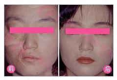 组织扩张术祛疤治疗效果图