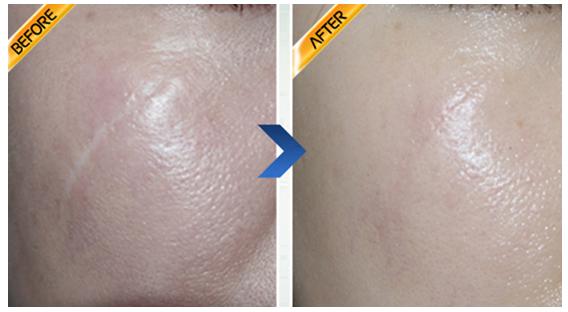 皮肤移植术祛疤治疗效果图