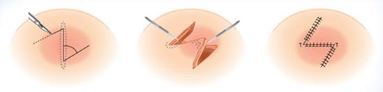 Z型疤痕矫正治疗方法手术示意图