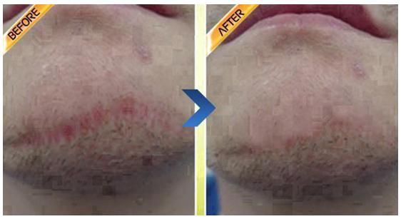 Z型疤痕矫正治疗效果图