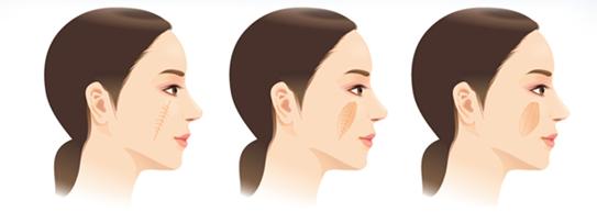椭圆形疤痕矫正治疗方法手术示意图