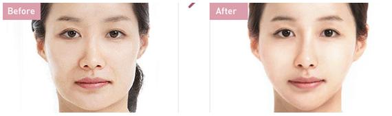 手术面部提升治疗效果图