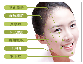 激光面部提升治疗方法手术示意图
