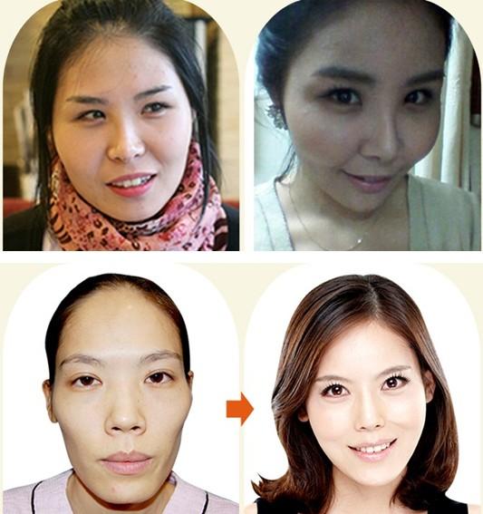 脸部自体脂肪移植治疗效果图