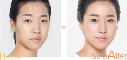 PRP脸部自体脂肪移植治疗效果图