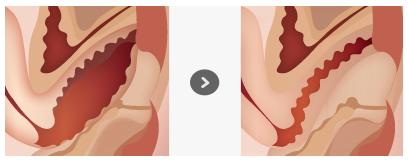 手术切开缝合法紧缩阴道治疗效果图