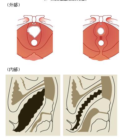 激光治疗紧缩阴道治疗效果图