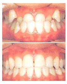 牙齿拥挤治疗效果图