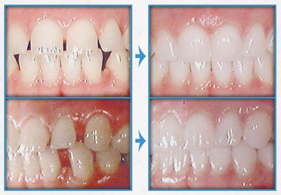 牙齿稀疏治疗效果图