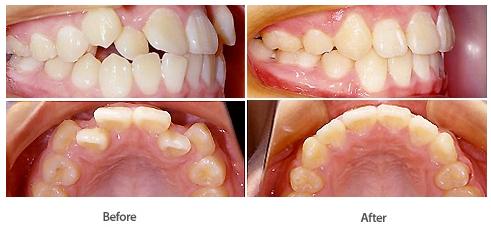 牙齿畸形治疗效果图