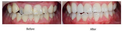 烤瓷牙治疗效果图