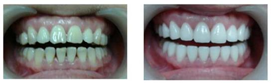 全瓷牙治疗效果图
