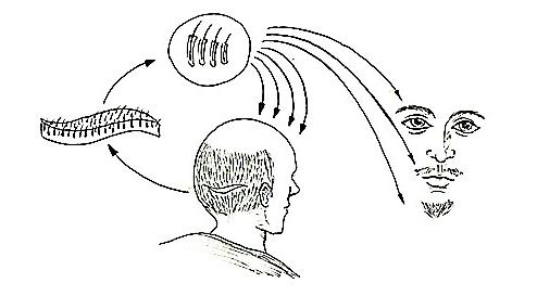 毛囊单位移植治疗方法手术示意图