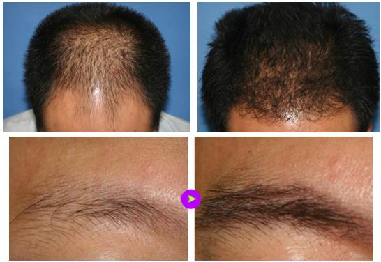 单一毛发移植治疗效果图