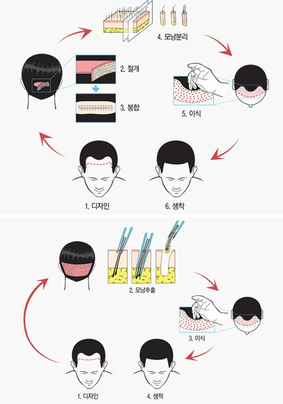 发际线矫正术治疗方法手术示意图
