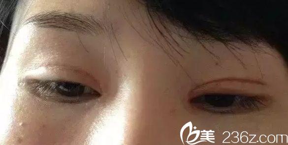 割双眼皮失败 上海华美