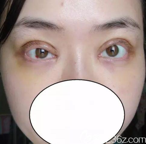 双眼皮费用 双眼皮割的不好看