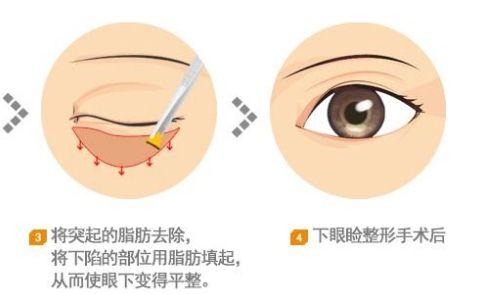 湖北省中医院改善泪沟的较有效方式