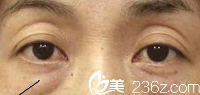 湖北省中医院阴影型黑眼圈