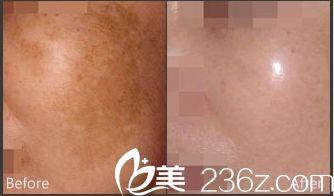 唐山紫水仙医疗美容诊所祛除黄褐斑手术案例