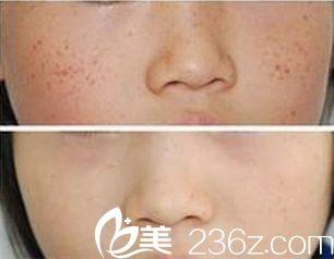 唐山紫水仙医疗美容诊所祛除雀斑手术案例