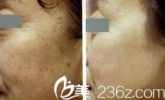 唐山紫水仙医疗美容诊所老年斑案例