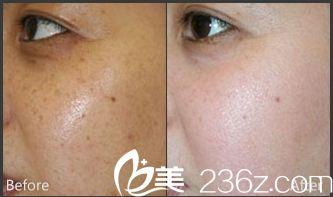 唐山紫水仙医疗美容诊所祛除晒斑手术案例