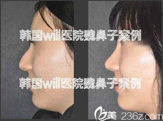 韩国will医院魏鼻子驼峰鼻矫正案例