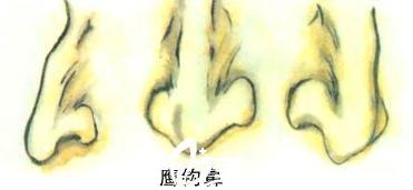 鹰钩鼻的典型特征