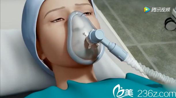 韩国will医院驼峰鼻矫正——睡眠麻醉