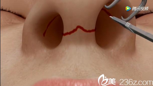 韩国will医院驼峰鼻矫正——沿着鼻孔内沿做碟形切口