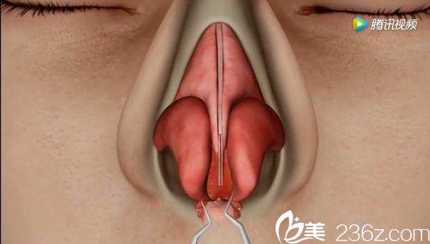 韩国will医院驼峰鼻矫正—分离出一个完整的鼻部腔隙