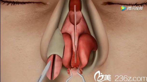 韩国will医院驼峰鼻矫正—切除多余的驼峰组织部分