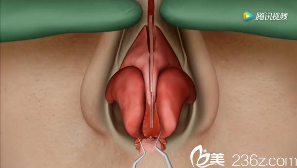 韩国will医院驼峰鼻矫正—鼻骨向内推