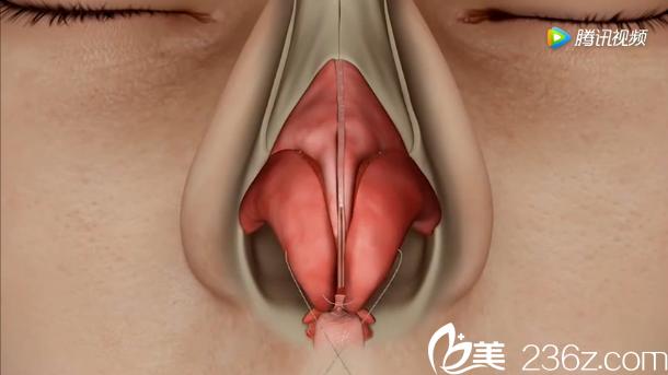 韩国will医院驼峰鼻矫正—缩窄鼻翼