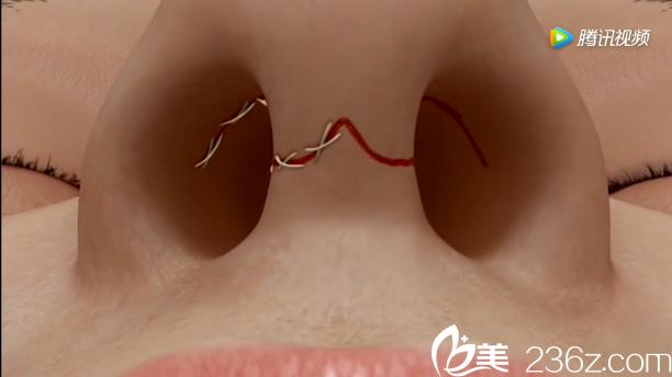 韩国will医院驼峰鼻矫正—缝合手术切口