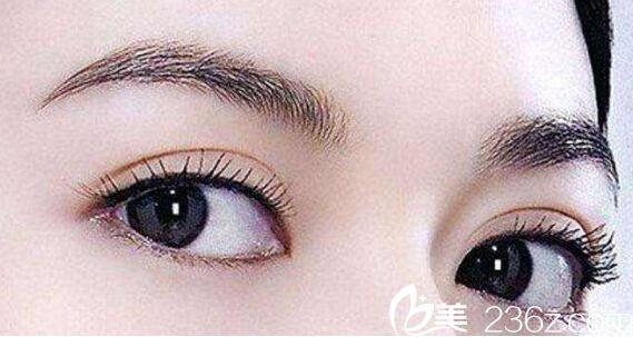 北京京民医院双眼皮