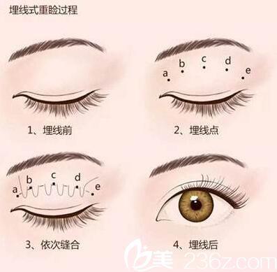 北京京民医院埋线双眼皮的图例