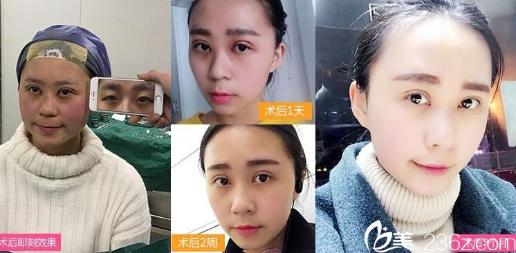上海华美医院患者做后图