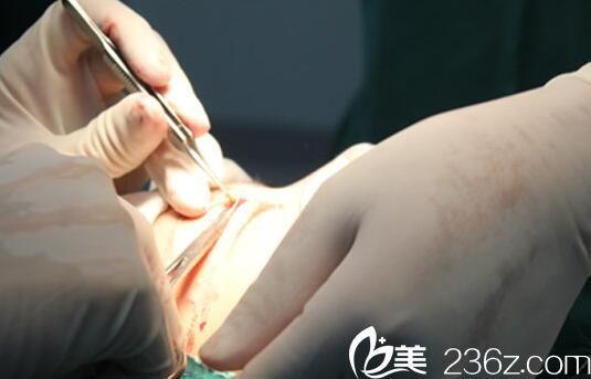 上海华美医院医用显微镜