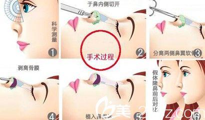 假体隆鼻手术过程示意图