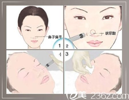 注射玻尿酸隆鼻过程示意图