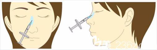 注射玻尿酸隆鼻